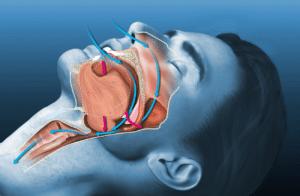 Sleep Apnea ICD 10 code